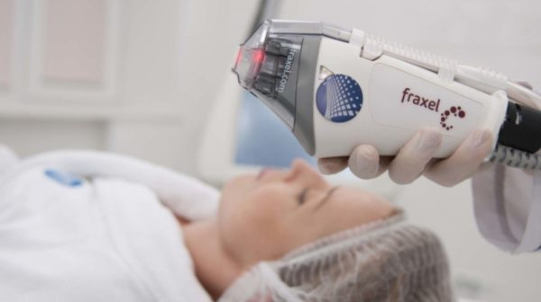 аппаратаFraxel - единственный неаблятивный фракционный лазер с двумя длинами волн